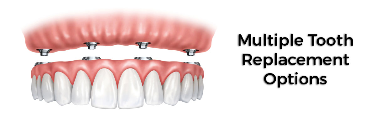 Carmel Multiple Teeth Replacement Options